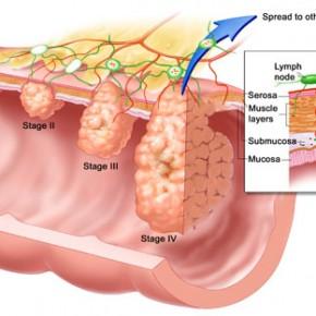 Как остановить метастазы рака?