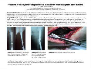 endoprosthesis in children