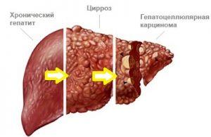 Hepatyt